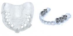 3D-печать в стоматологии