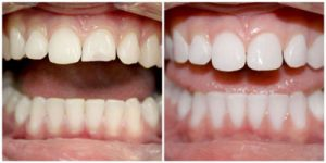 Зубной скол