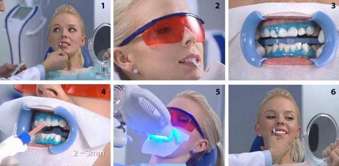 Этапы процедуры фотоотбеливания BEYOND Polus