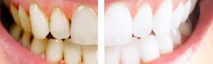 аир фло чистка зубов