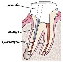 виниры на два зуба